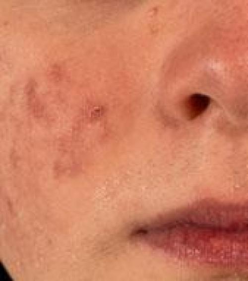 vörös folt a zuzmófotó bőrén puva pikkelysömör kezelése