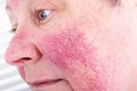 vörös pillangó alakú foltok az arcon jellemzőek dermatitis és pikkelysömör gyógyszerek