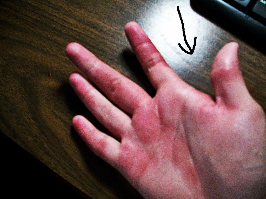 piros kis foltok a bőrön fotó házi kvarclámpák pikkelysömör kezelésére