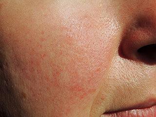 vörös pelyhes folt az orr alatt