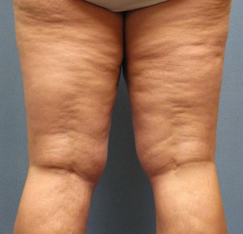 pikkelysömör mi ez a betegség és hogyan lehet gyógyítani vörös foltok a testen a hasban