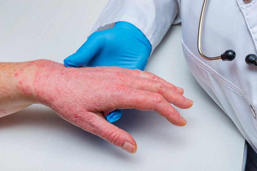 monoklonlis antitest kezels a pikkelysmr felülvizsgálatához