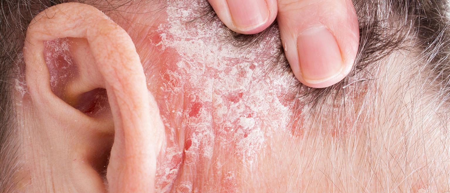 a pikkelysömör súlyosbodása és kezelése pikkelysömör kezelése termálvizekkel
