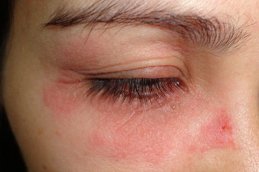 a szem alatti arcon vörös folt jelent meg vörös foltok az arcbőrön hámló