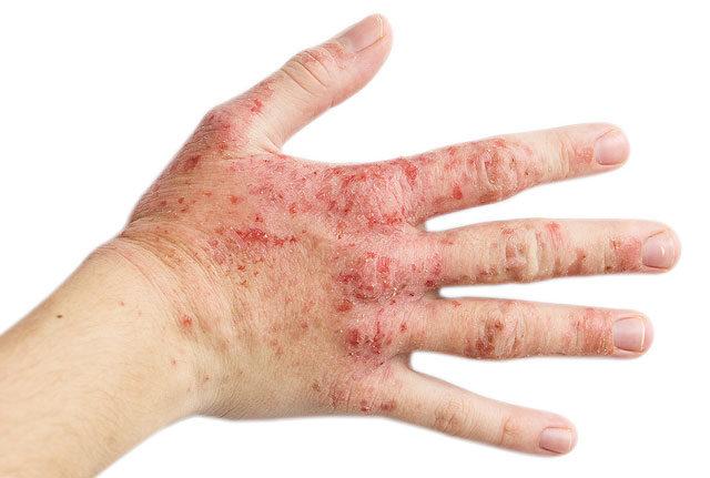 vörös száraz foltok a kezek alatt