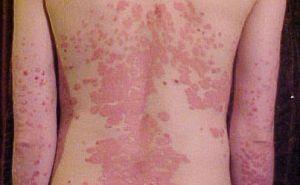 vörös foltok a testen a vörös foltok okozói a bőrön arc vörös foltokkal, hámlás és viszketés