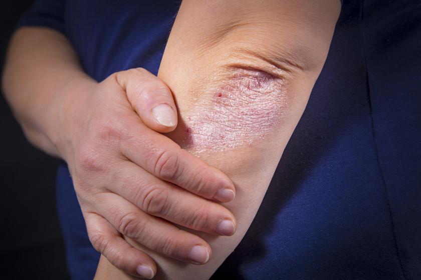 hogyan lehet pikkelysömör gyógyítani a kezek