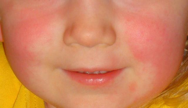 torokfájás vörös foltok az arcon