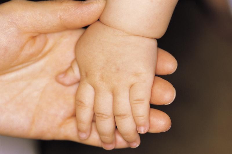 piros száraz foltok a kezét fotó hogyan s hogyan kell kezelni a pikkelysmr népi gyógymódokat