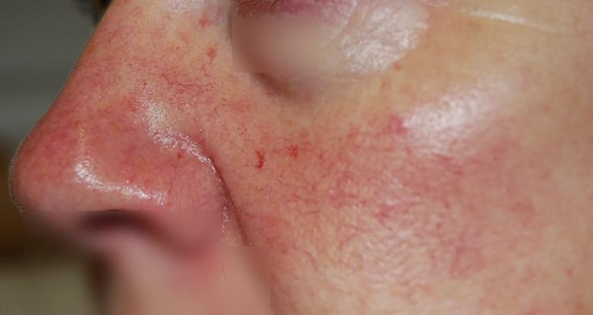 vörös foltok az orr közelében, hogyan lehet eltávolítani pikkelysömör gyógyszerek a fejen