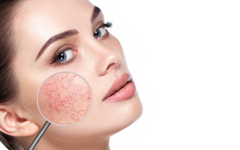 seborrheás dermatitis vörös foltok az arcon