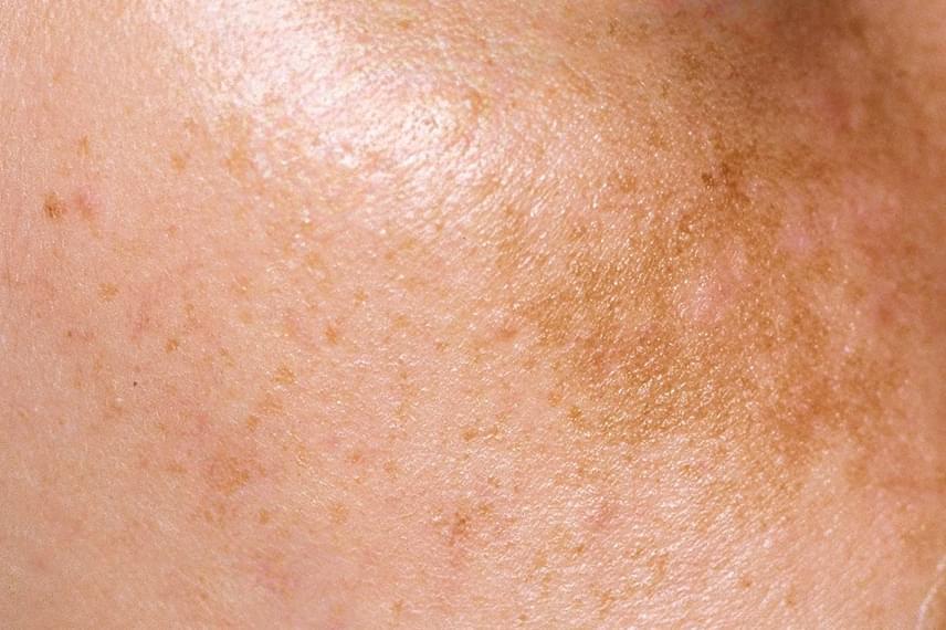 vörös foltok a lábakon a bőr alatt hogyan lehet megtisztítani a vörös foltokat