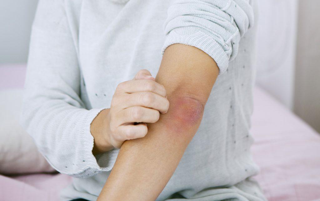 Hámlik, vörös, viszket: így kezeld természetesen a pikkelysömört - Egészség   Femina