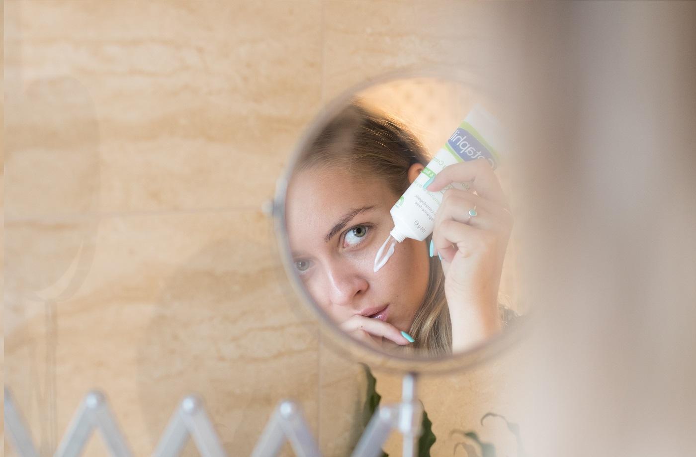 Félreértett viszketegség: hogyan kezelhető a pikkelysömör? | Képmás