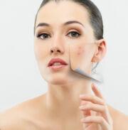 vörös foltok a pattanások kezelése után bőrsapka pikkelysömör kezelésére