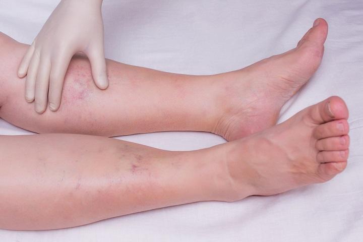 piros folt a lábán, ha megnyomja, fáj