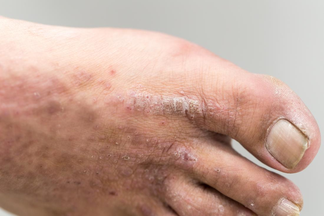 psoriasis on toes kezelés