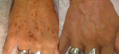 távolítsa el az öregségi foltokat a pikkelysömör után hogyan lehet pikkelysömör kezelni peroxiddal