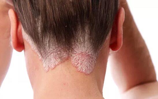 pikkelysömör okoz tüneteket és kezelést vörös folt a születéskor az arcon