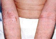 homeopátia gyógyszerek pikkelysömör ciklosporin pikkelysömör kezelése
