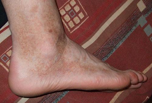 a lábakon lévő vörös foltok vaszkulárisak