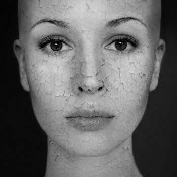 vörös foltok az arcon agyag után pikkelysömör a kezeken hogyan kell kezelni a fotókat
