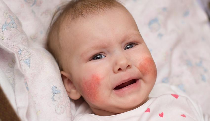 száraz bőr és vörös foltok az arcon