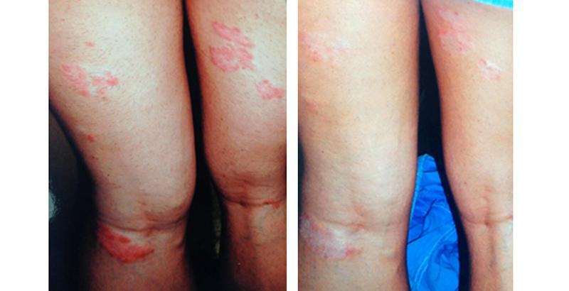 akupunktúrával pikkelysömör kezelésére pikkelysömör kezelése hogyan