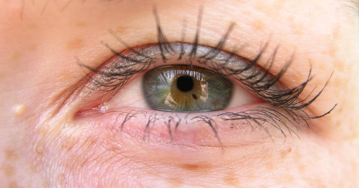 a szem alatt vörös foltok és pelyhek vannak pegano diéta pikkelysömörhöz