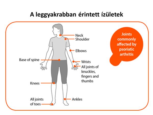 ízületi fájdalom a pikkelysömör kezelésében vörös pikkelyes foltok a testen viszket fénykép hogyan kell kezelni