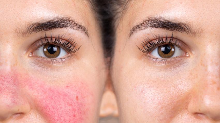 vörös pillangó alakú foltok az arcon jellemzőek lehetséges-e megszabadulni az arc vörös foltjaitól