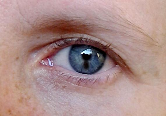 vörös pikkelyes foltok jelentek meg a szemhéjon