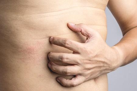 piros foltok a háton és a gyomor fotó