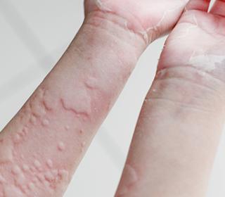 piros folt a kéz hátán pikkelysömör kezelést okoz népi gyógymódokkal