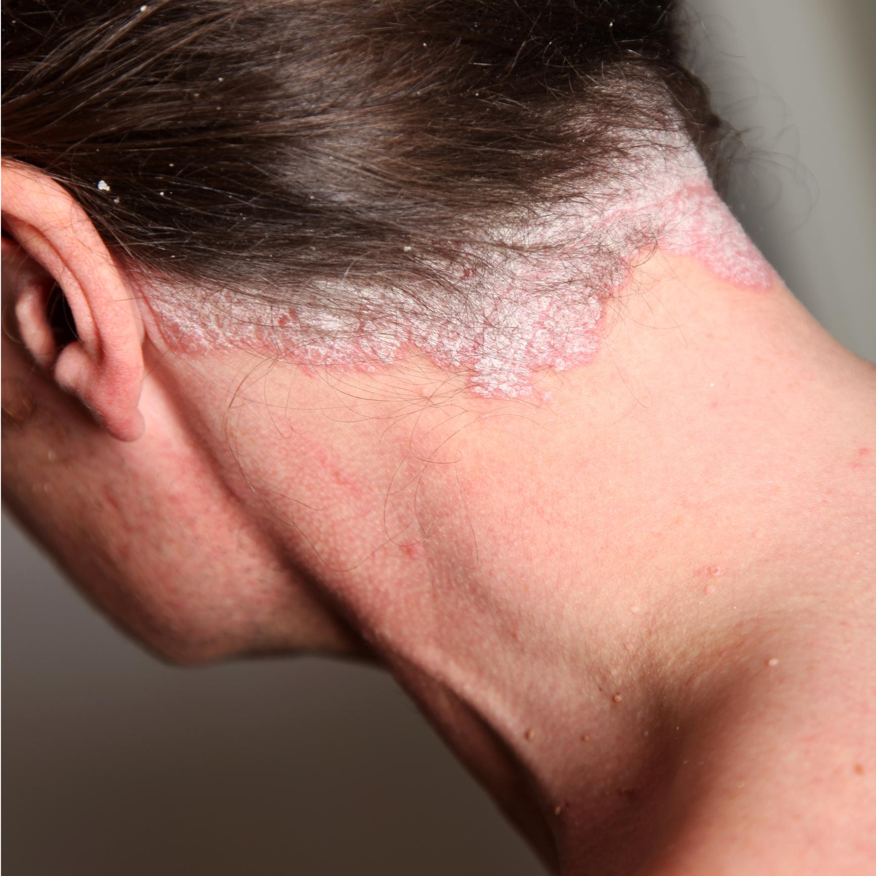 pikkelysömör kezelés csoport érintkezésben vörös foltok az arcon lehámlik, hogyan kell kezelni