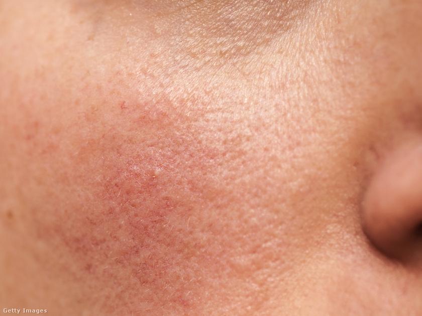 apró vörös foltok jelentek meg az arcon vörös bőrfoltok jelennek meg a bőrön viszketés
