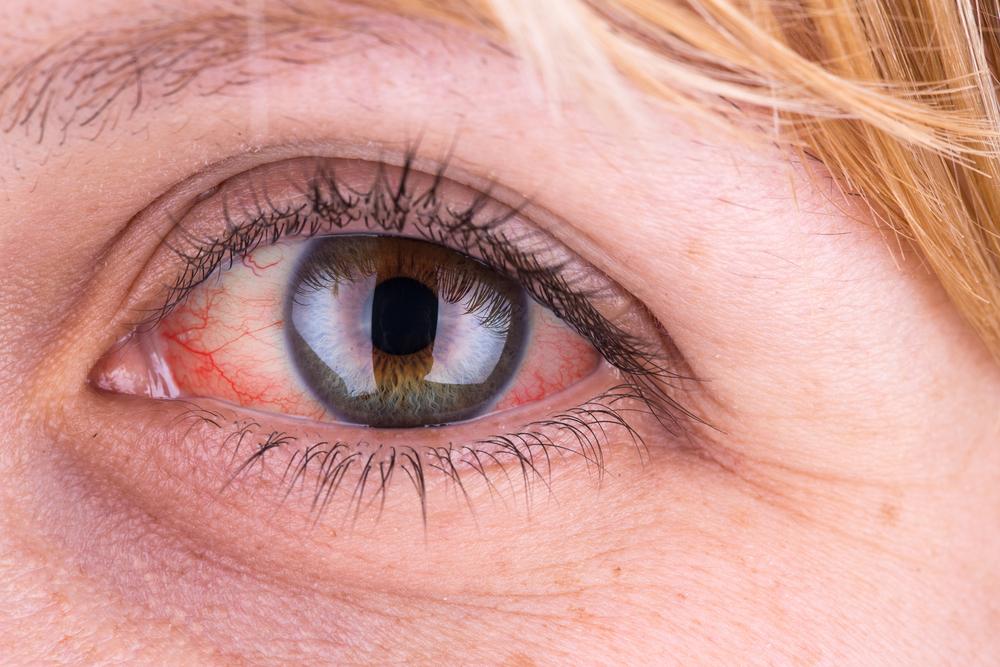 a szemhéjon vörös folt hámlik