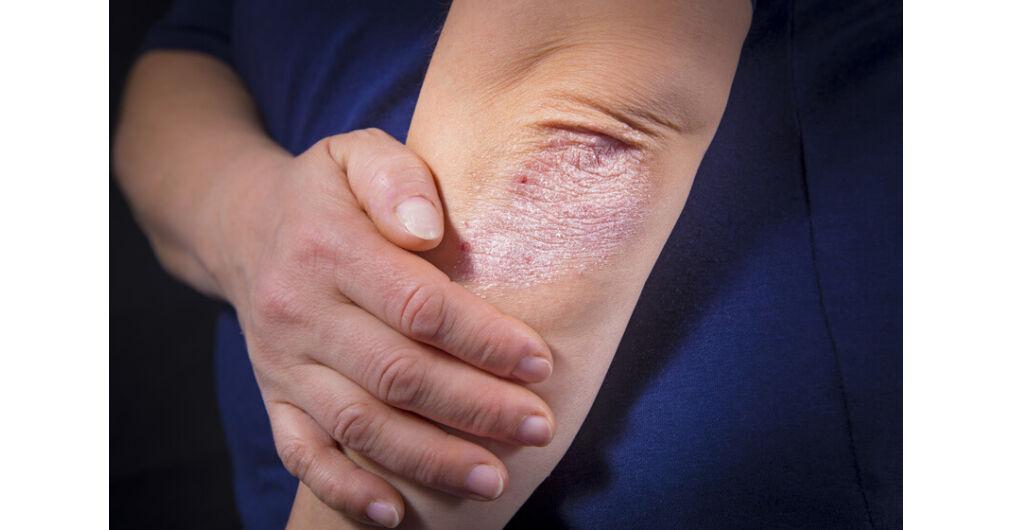 arany bajusz pikkelysömör kezelése vörös foltok jelentek meg a karon és a gyomorban