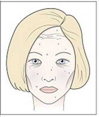 A legjobb folthalványítók az arcbőr esetében | Marie Claire