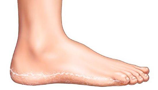 a lábak viszketnek és vörös foltok jelennek meg