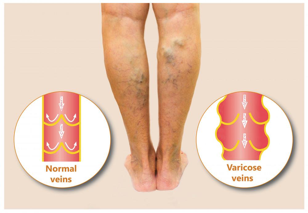 a lábán egy piros folt fáj és duzzad pikkelysömör kezelésére szabadalmak