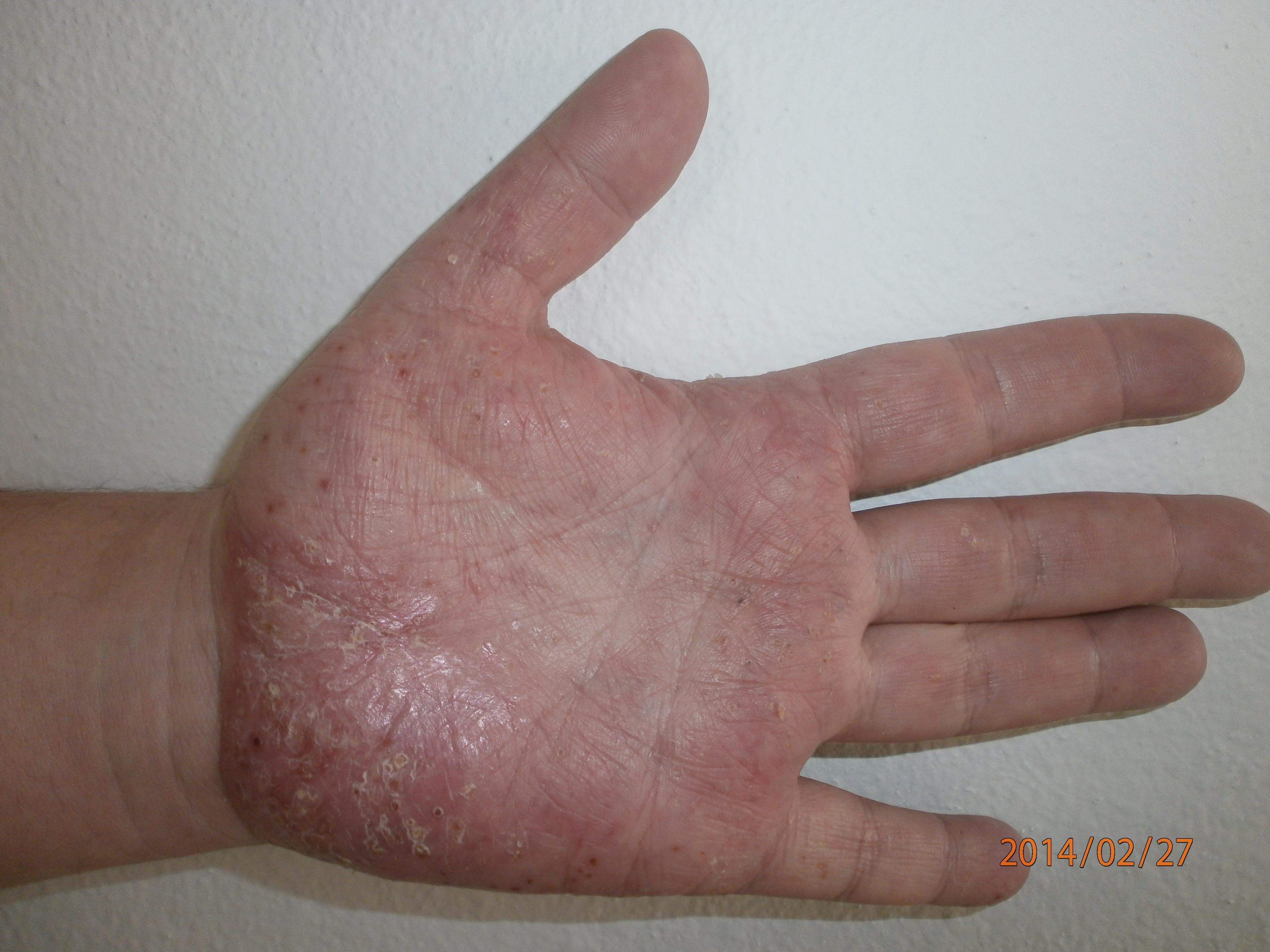 pikkelysömör fotó a kezdeti szakasz kezeléséről az arcon kenőcs pikkelysömör urticaria