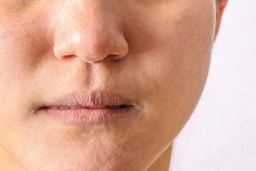 az orr közelében lévő arcon vörös foltok hámlanak mert milyen vörös foltok jelennek meg az arcon, amelyek lehámoznak