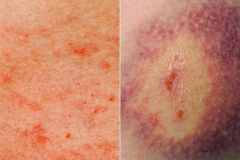 vörös folt jelent meg a gyomor bőrén