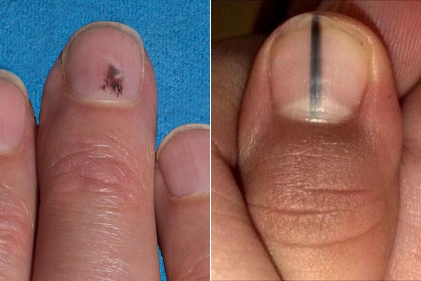 vörös foltok a kezek bőrén kezelés
