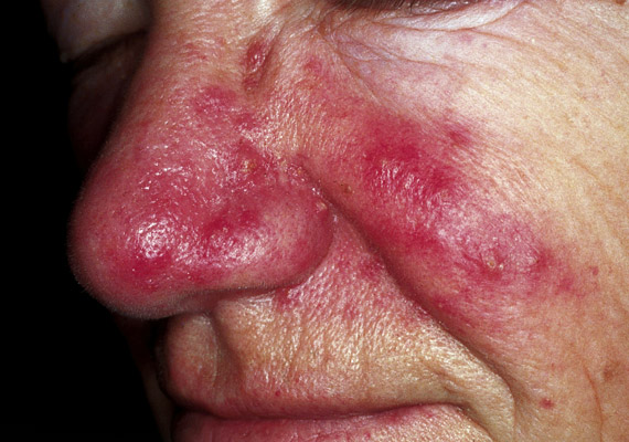 A bőratka kozmetikai és otthoni kezelése is fontos