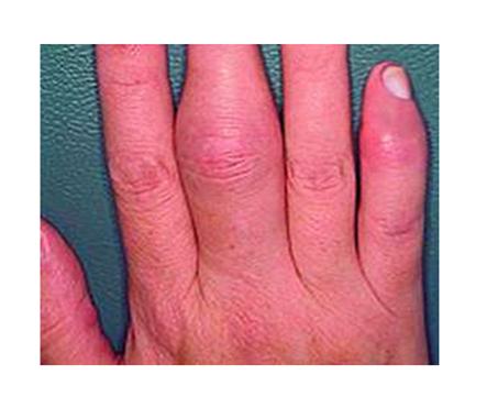 pikkelysömör tünetei kezelik vörös foltok a lábakon viszketnek és fájnak