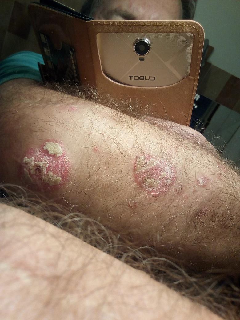 viaszkrém egészséges pikkelysömörről vélemények
