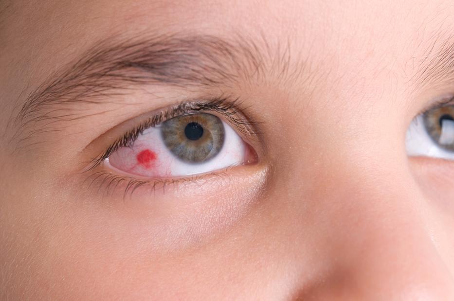 a szem alatt vörös foltok és pelyhek vannak krém ezüsttel pikkelysömörhöz