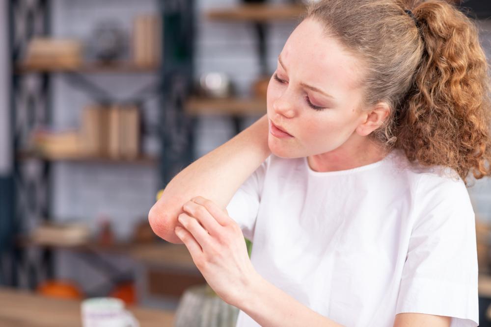 bojtorján a pikkelysömör kezelésében